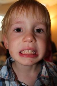 Teeth 002