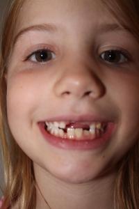 Teeth 005